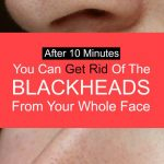 apply-this-for-10-minutes-and-get-rid-of-blackheads-from-your-whole-face