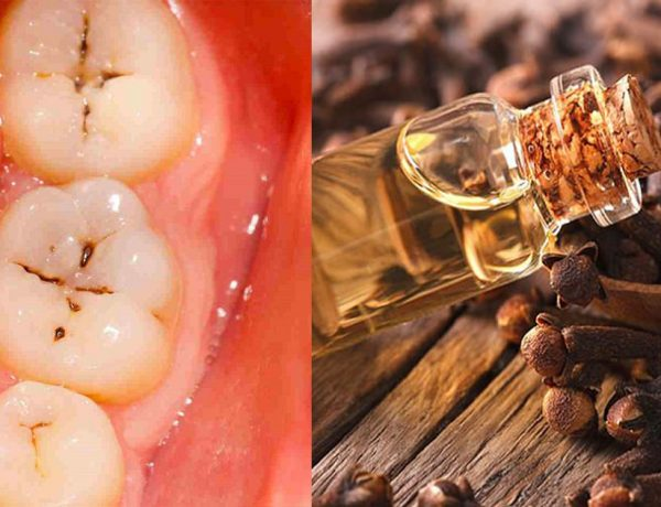 use-this-1-natural-ingredient-to-eliminate-your-toothache-in-4-minutes5