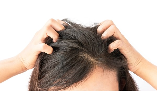 15. Relief from an itchy scalp1