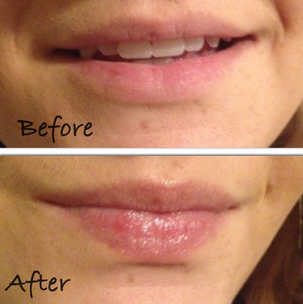 4. Healing Cuts & Chapped Lips1