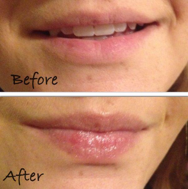 4. Healing Cuts & Chapped Lips1