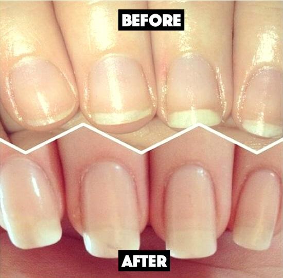 DIY Nails Soak 4