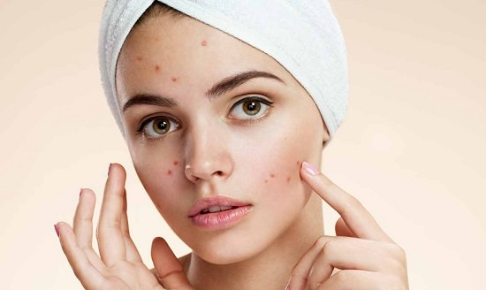 These Egg White Benefits on Skin, available with recipes are science-backed and effective. Trying them can help you achieve a flawless and beautiful face in no time!