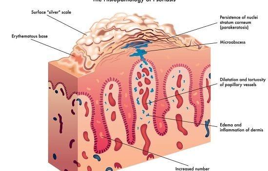 TreatingPsoriasis