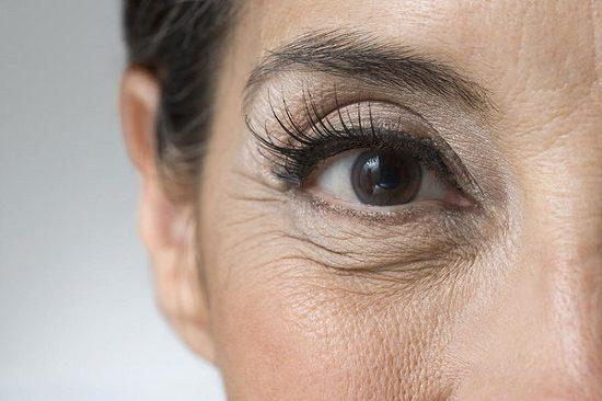 Wrinkles Near Eyes