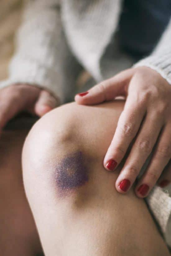 How Does Rhodonite Heal Bruises2