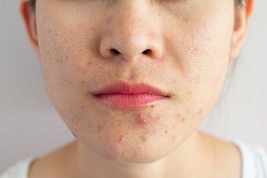 Black Pepper Benefits for Skin 2