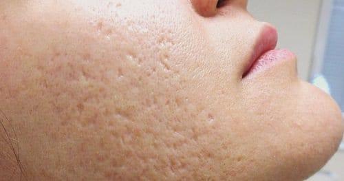 Does Glycerin Clog Pores2